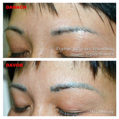 Microblading and Tattoo Removal for Brows - Swanky! Brow